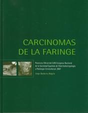Carcinomas de la faringe (2007)