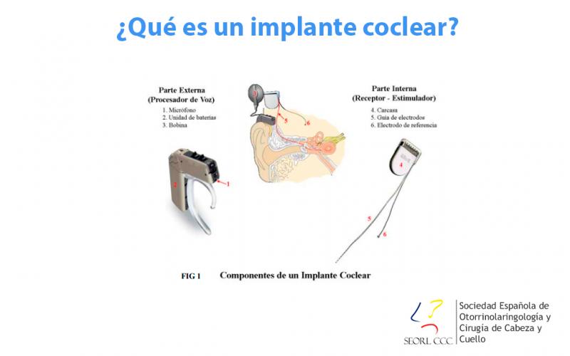 ¿Qué es un implante coclear?
