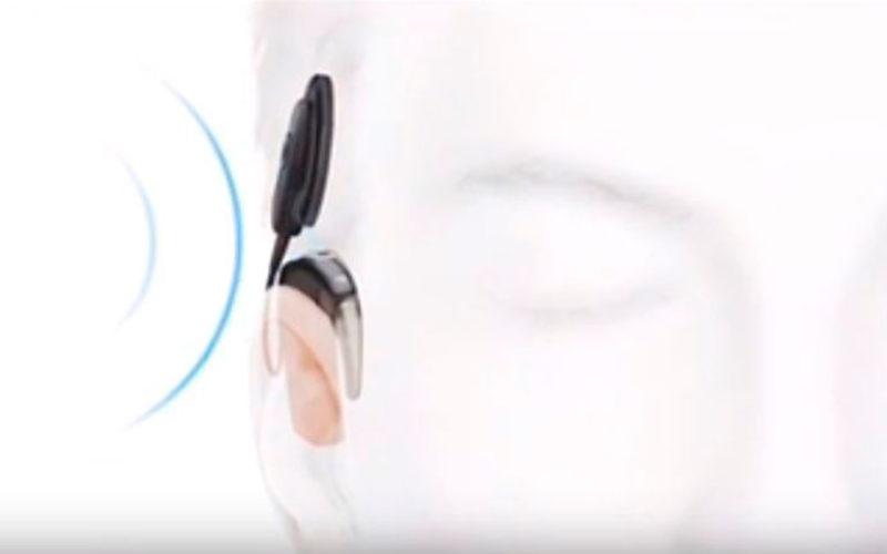 Qué es y para qué sirve un implante coclear
