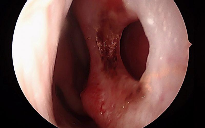 Perforaciones septales: causas y tratamiento