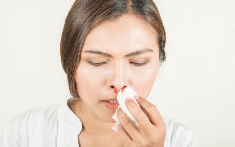 Hemorragias nasales: ¿por qué nos sangra la nariz?